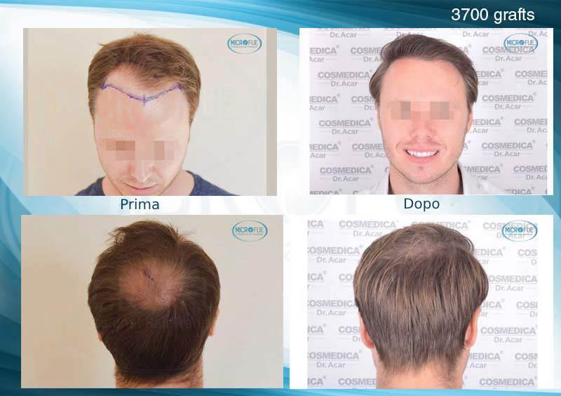 immagini-risultati-capelli-trapianto-Turchia-microfue_