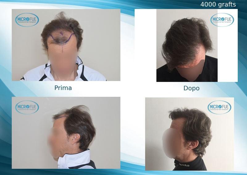 innesto capillare a Istanbul trapianto di capelli in Turchia Microfue (16)