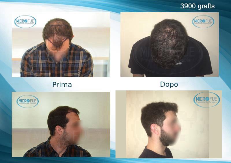 risultati del trapianto di capelli in Turchia metodo FUE (19)