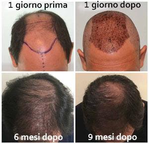 trapianto di capelli giorno dopo giorno