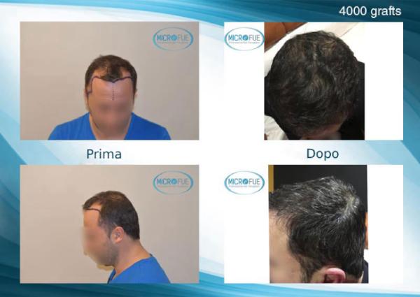 foto dei risultati prima e dopo un trapianto di capelli