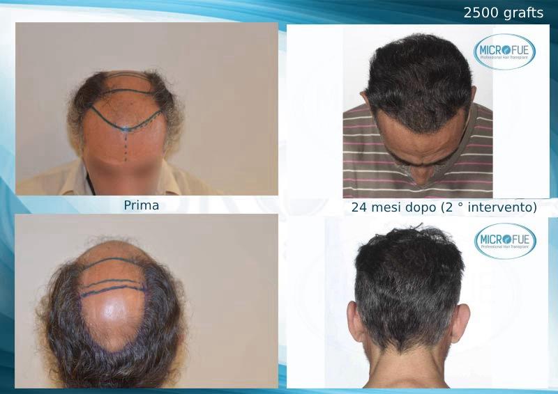 secondo intervento di trapianto di capelli in Turchia_prima_e_dopo
