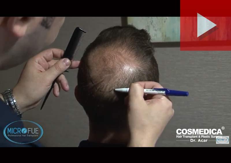 secondo trapianto di capelli FUE in Turchia