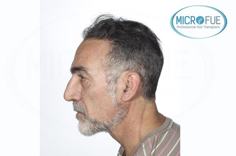trapianto di capelli con risultati di immagini in Turchia con Microfue (1)