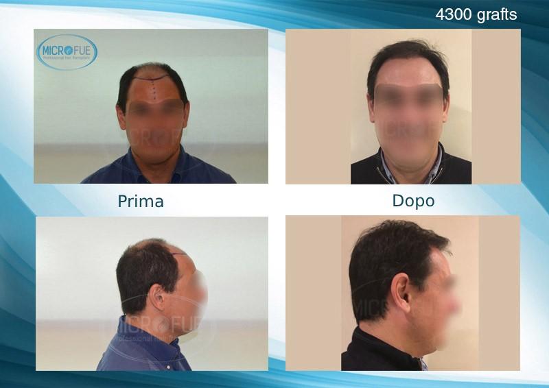 trapianto di capelli in Turchia FUE risultati (1)