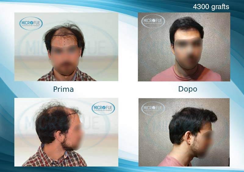trapianto di capelli in Turchia innesto capillare a Istanbul FUE Microfue (19)