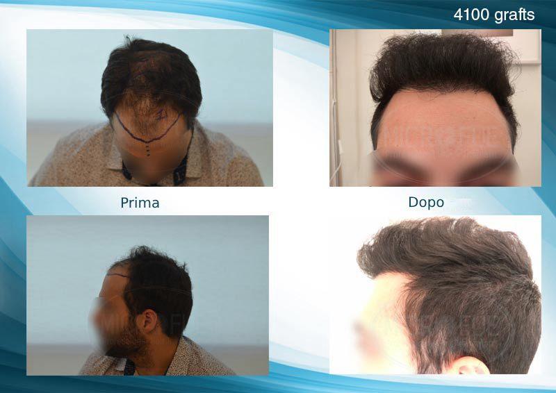 trapianto di capelli tecnici FUE in Turchia Microfue_ (3)