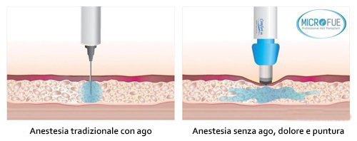 anestesia indolore microfue