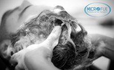Post trapianto capelli: che cosa succede dopo il trapianto di capelli?