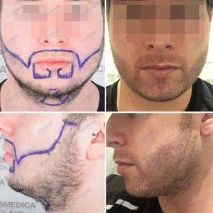 trapianto capelli nella barba microfue turchia