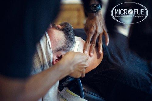 trapianto capelli sulla barba Turchia Microfue