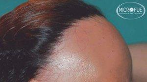 alopecia frontale fibrosante trapianto capelli turchia