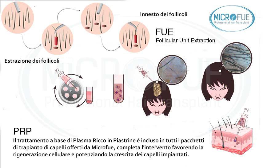 trapianto capelli Turchia trattamento plasma ricco in piastrine