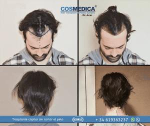 Trapianto capelli Turchia senza rasatura