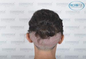 Trapianto di capelli Turchia Microfue
