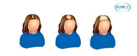 evoluzione calvizie femminile