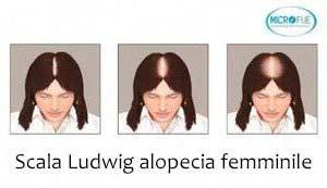 Scala Ludwig per l'alopecia femminile