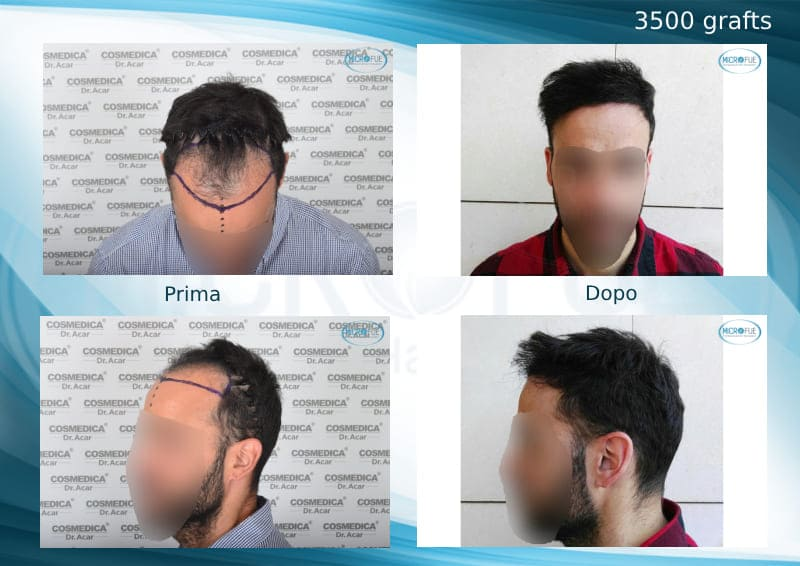 trapianto di capelli in Turchia con Microfue risultati eccellenti