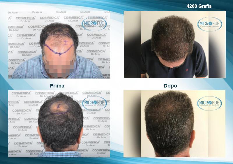 Risultati trapianto capelli (1)