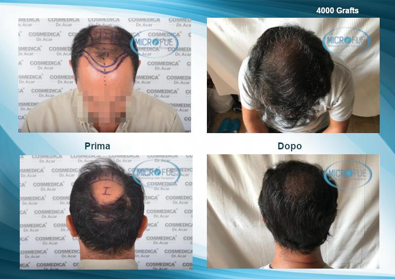 trapianto capelli galleria fotografica prima e dopo