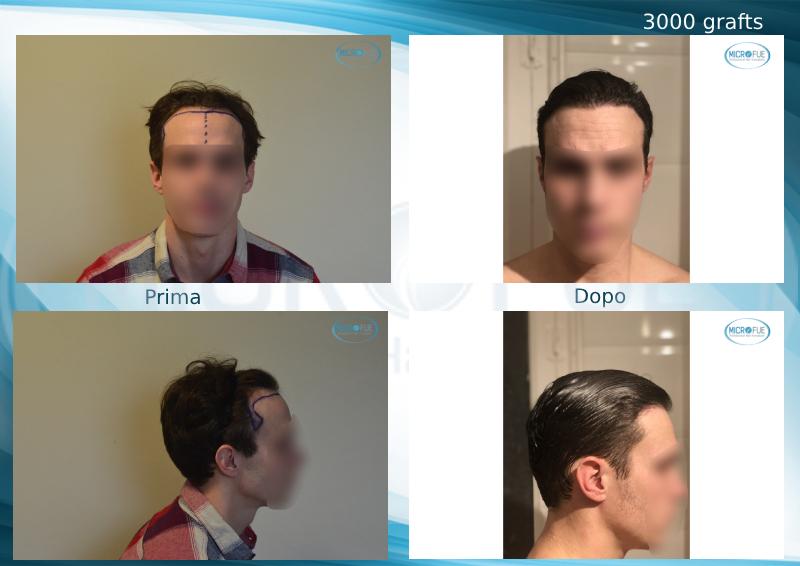 trapianto di capelli senza tagliare i capelli Microfue prima dopo