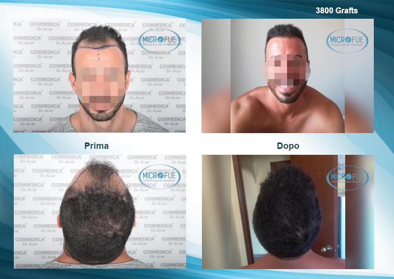 evoluzione trapianto di capelli turchia migliori risultati