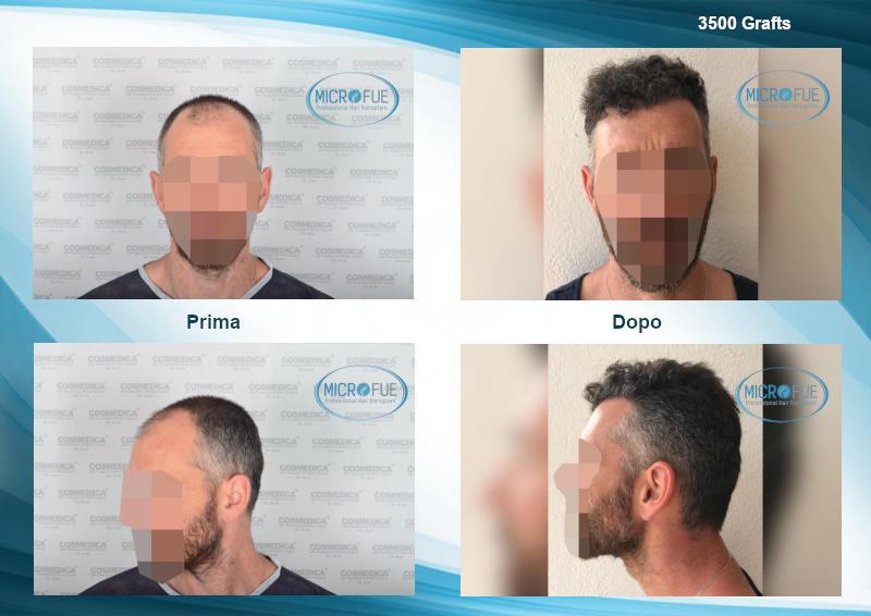 evoluzione trapianto capelli turchia