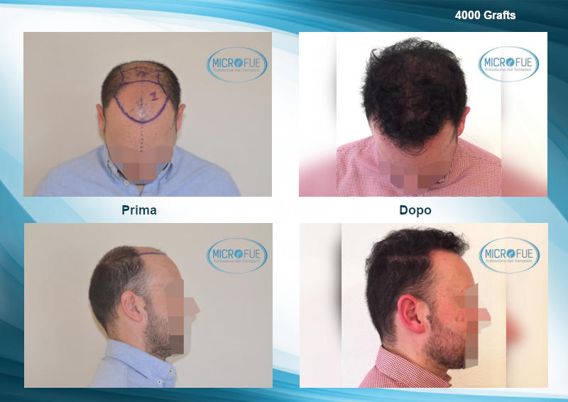 migliori risultati di trapianto di capelli