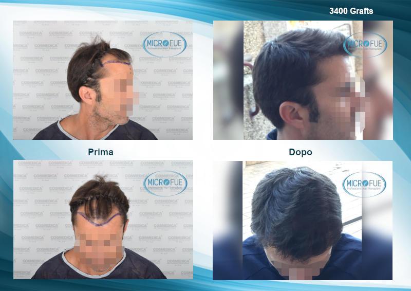 evoluzione e risultati trapianto capelli