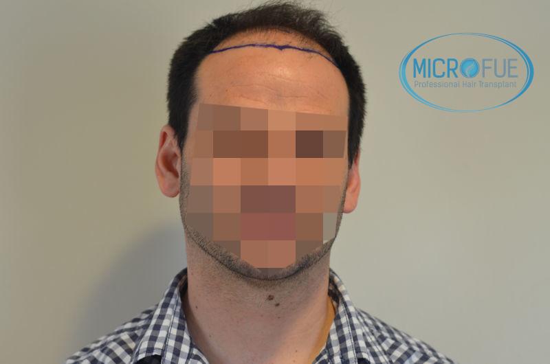 recensioni trapianto capelli turchia microfue 2018