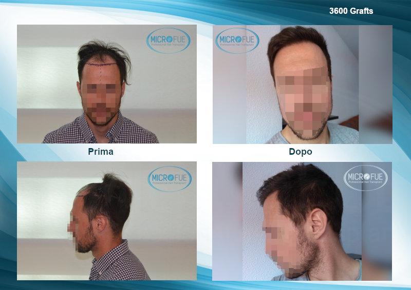 evoluzione e risultati trapianto capelli migliori clinica turchia