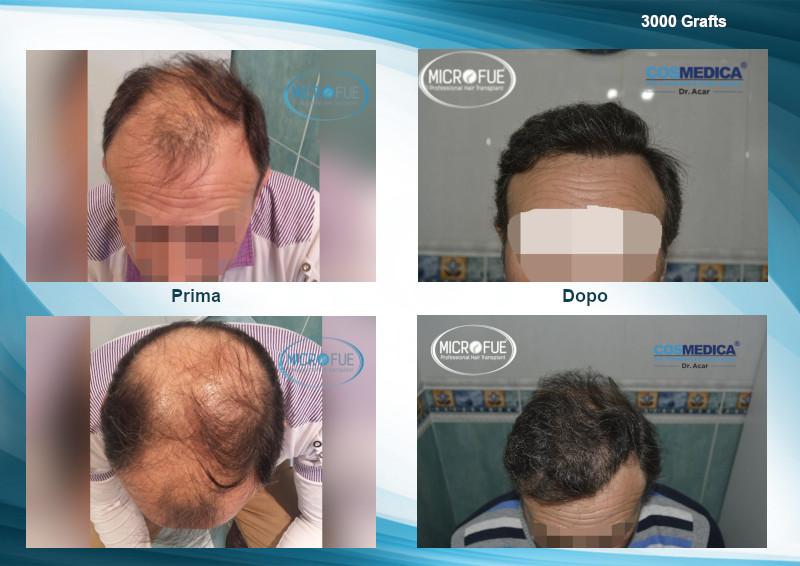 trapianto capelli turchia prima e dopo