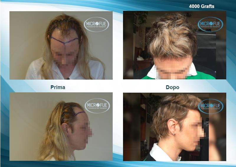 trapiato capelli turchia confronto resultati