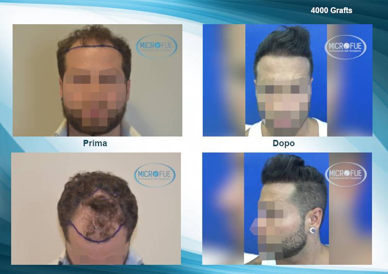 galleria comparativa risultati di trapianto di capelli in turchia