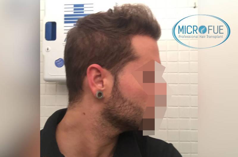 risultato del trapianto di capelli laterale 6 mesi