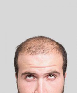 autotrapianto di capelli cosa significa
