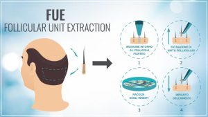 autotrapianto di capelli microfue