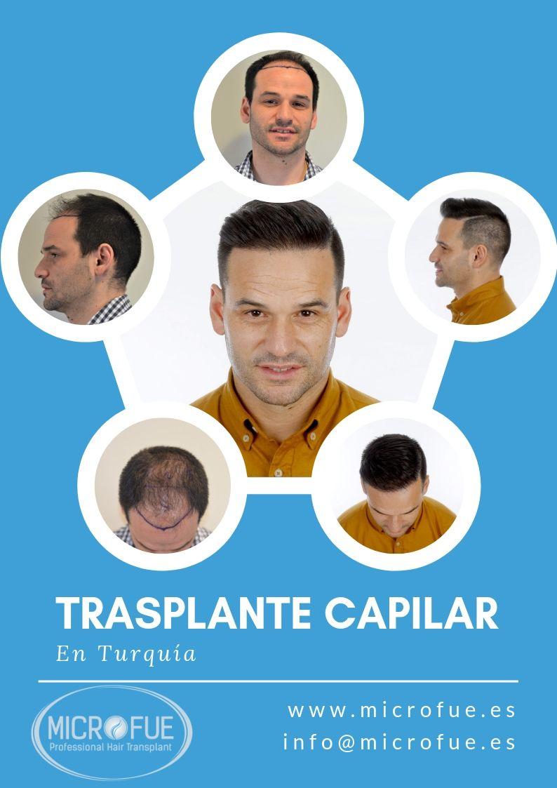 microfue - perché il trapianto di capelli in Turchia?