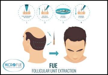 Il trapianto di capelli: la soluzione alla calvizie