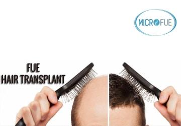 Qual è la tecnica più efficace per il trapianto di capelli?