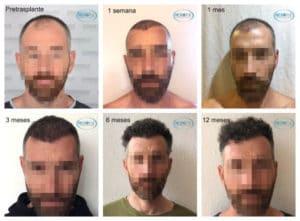 evoluzione trapianto capelli
