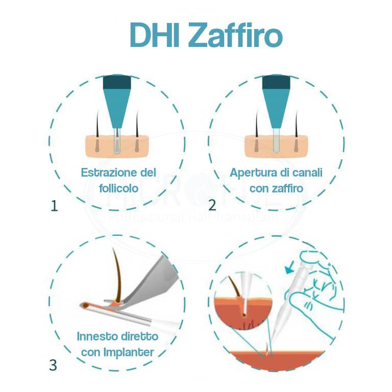 infografia_dhi_ITA