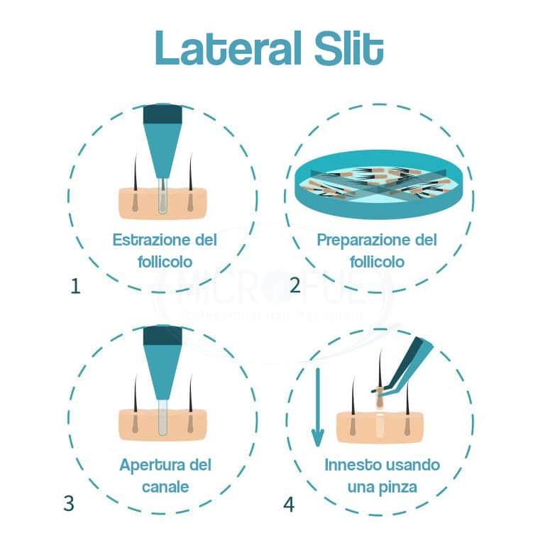 infografia_lateral slit_ITA