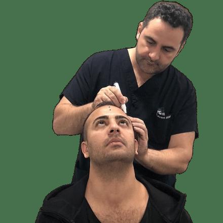 valutazione-trapianto-di-capelli